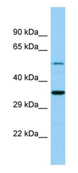 Western blot - Anti-Ghrelin O acyltransferase antibody - N-terminal (ab178893)