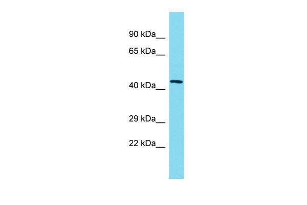 Western blot - Anti-NSMCE4A antibody - C-terminal (ab178898)