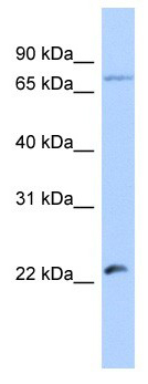 Western blot - Anti-HSFY2 antibody (ab179421)