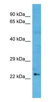 Western blot - Anti-OSR1 antibody - N-terminal (ab179612)