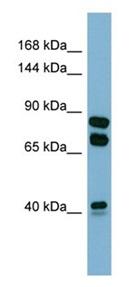 Western blot - Anti-PXDN antibody - N-terminal (ab179663)