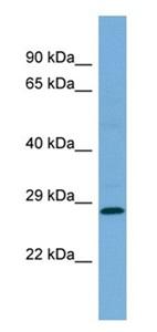 Western blot - Anti-MED19 antibody (ab179735)