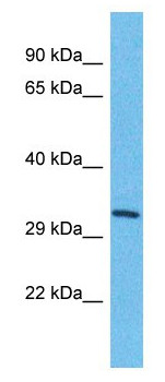 Western blot - Anti-TMEM202 antibody - C-terminal (ab179915)