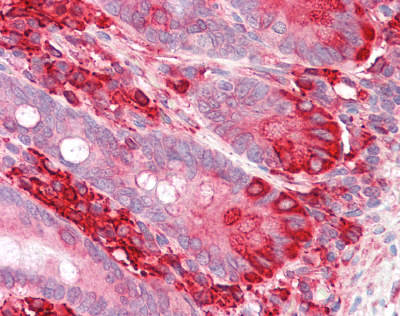 Immunohistochemistry (Formalin/PFA-fixed paraffin-embedded sections) - Anti-TXNDC5 antibody - C-terminal (ab179922)