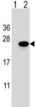 Western blot - Anti-Sar1 antibody (ab179929)