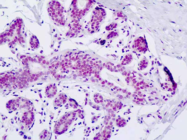 Immunohistochemistry (Formalin/PFA-fixed paraffin-embedded sections) - Anti-PRKCBP1 antibody (ab179942)