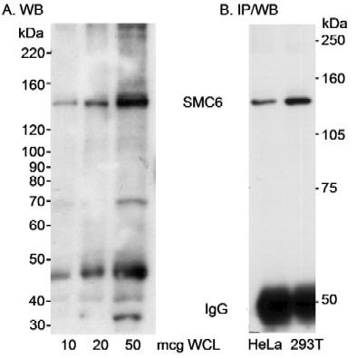 Western blot - Anti-SMC6L1 antibody (ab18039)