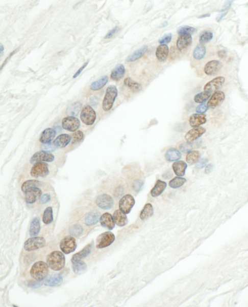 Immunohistochemistry (Formalin/PFA-fixed paraffin-embedded sections) - Anti-SMC6L1 antibody (ab18039)