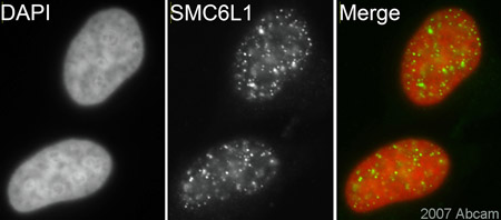Immunocytochemistry/ Immunofluorescence - Anti-SMC6L1 antibody (ab18039)