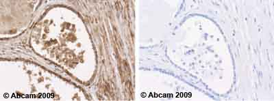 Immunohistochemistry (Formalin/PFA-fixed paraffin-embedded sections) - Anti-Vinculin antibody [SPM227] (ab18058)