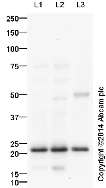 Western blot - Anti-p21 antibody (ab18209)