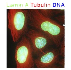 Immunocytochemistry/ Immunofluorescence - Anti-alpha Tubulin antibody (ab18251)