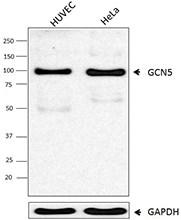 Western blot - Anti-KAT2A / GCN5 antibody (ab18381)
