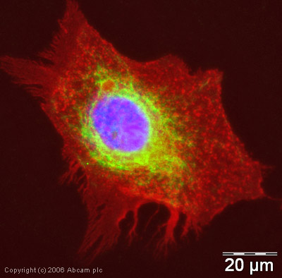 Immunocytochemistry/ Immunofluorescence - Anti-LAMP2B antibody - Lysosome Marker (ab18529)