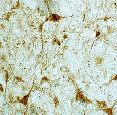 Immunohistochemistry - Anti-Choline Acetyltransferase antibody (ab18736)