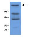 Western blot - Anti-HDAC9 antibody (ab18970)
