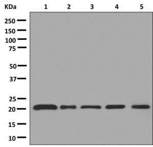 Western blot - Anti-AKAP14 antibody [EPR12955] - C-terminal (ab180160)