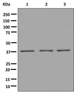 Western blot - Anti-VPS26 [EPR13455(B)] antibody (ab180172)