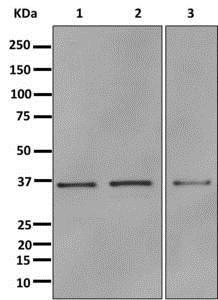 Western blot - Anti-Annexin A10 antibody [EPR13101] (ab180182)