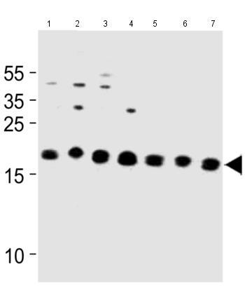 Western blot - Anti-ICT1 antibody - C-terminal (ab180210)