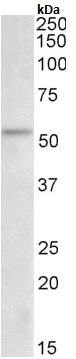 Western blot - Anti-Chk1 antibody (ab180219)