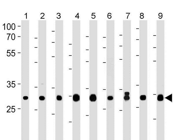 Western blot - Anti-PITPN antibody - C-terminal (ab180234)