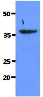 Western blot - Anti-Sorbitol Dehydrogenase [AT10F4] antibody (ab180261)