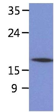 Western blot - Anti-Signal sequence receptor delta  [AT26G5] antibody (ab180262)