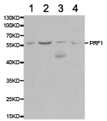Western blot - Rabbit Polyclonal to Perforin (ab180773)