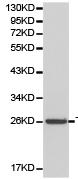 Western blot - Anti-DcR1 antibody (ab180777)