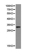 Western blot - Anti-StAR antibody (ab180804)