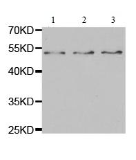 Western blot - Anti-Interferon Receptor alpha antibody (ab180812)