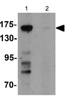 Western blot - Anti-ULK4 antibody - Carboxyterminal end (ab181010)