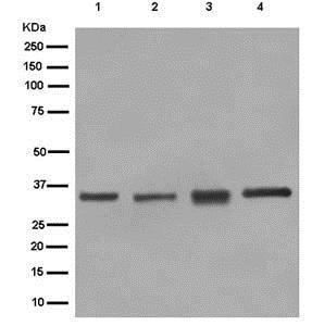 Western blot - Anti-RBM43 [EPR12830] antibody (ab181026)