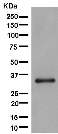 Western blot - Anti-TTC19 [EPR13184] antibody - C-terminal (ab181069)