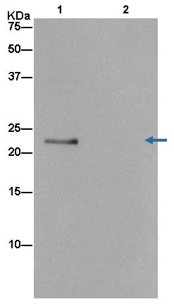 Immunoprecipitation - Anti-PSF1 [EPR13359] antibody (ab181112)