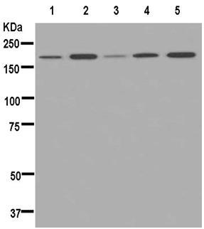 Western blot - Anti-Proteasome Activator Subunit 4 [EPR13576(B)] antibody (ab181128)