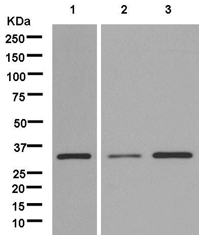 Western blot - Anti-C21orf59 antibody [EPR13320] (ab181135)