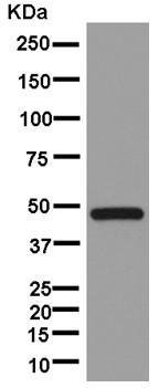 Western blot - Anti-TTC4 antibody [EPR13381-76] (ab181195)