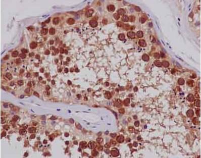 Immunohistochemistry (Formalin/PFA-fixed paraffin-embedded sections) - Anti-TTC4 antibody [EPR13381-76] (ab181195)