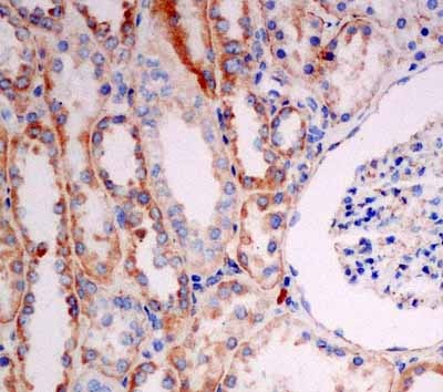 Immunohistochemistry (Formalin/PFA-fixed paraffin-embedded sections) - Anti-Solo [EPR13772] antibody (ab181228)