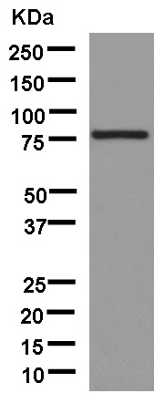 Western blot - Anti-Solo [EPR13772] antibody (ab181228)