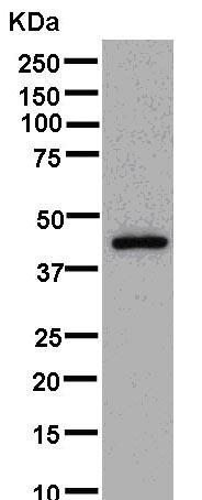 Western blot - Anti-LYAR antibody [EPR14352] (ab181261)