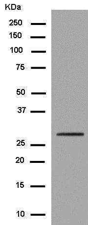 Western blot - Anti-RGS18 [EPR13405] antibody (ab181843)