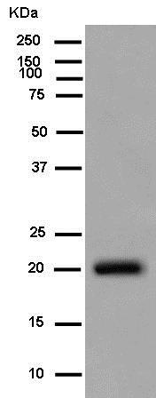 Western blot - Anti-C1orf93 [EPR13703-31] antibody (ab181978)