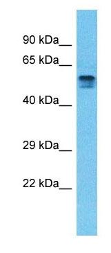 Western blot - Anti-PDE4D antibody - C-terminal (ab182351)