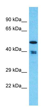 Western blot - Anti-THUMPD1 antibody (ab182545)