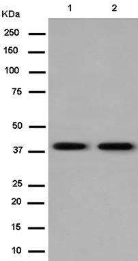 Western blot - Anti-Adrenomedullin Receptor L1 [EPR14327] antibody (ab182555)