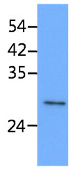 Western blot - Mouse Monoclonal to STOM (ab183196)