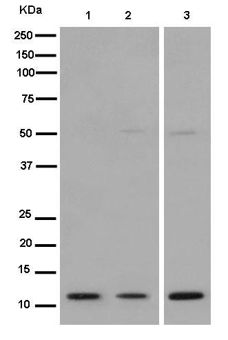 Western blot - Anti-robld3 antibody [EPR14378] (ab183514)